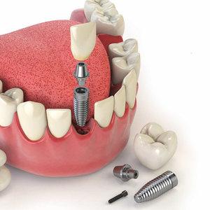 Технология установки имплантов зубов
