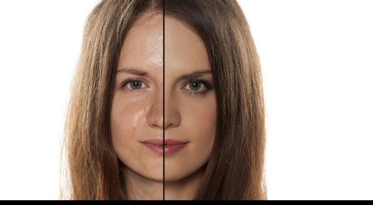 Особенности ухода за жирной, проблемной кожей