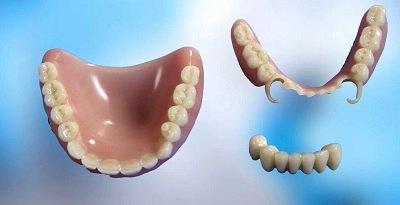 Какие зубные протезы лучше выбрать?