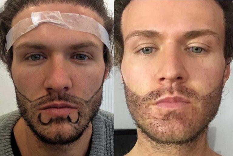 Способы пересадки волос на бороду