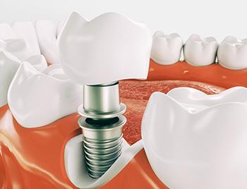 Этапы протезирования зубов в стоматологической клинике